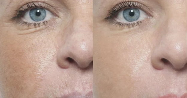 Activate Skin Non Injectional Mesotherapy