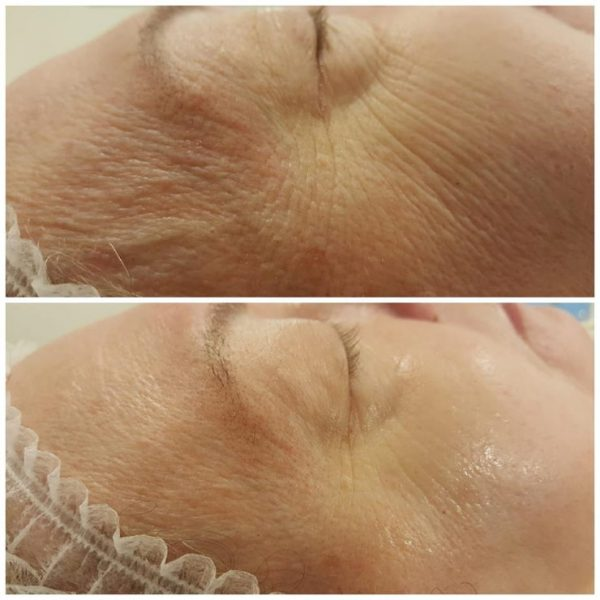 Non Injectional Mesotherapy