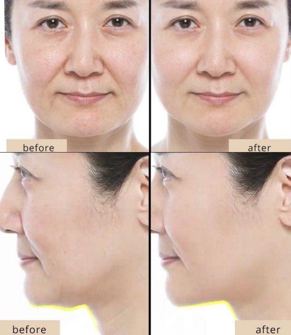 Revolutionary South Korean Skin lifting treatment mask